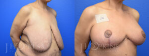 DrJHopkins_DallasTx_BreastReduction_B&A_Patient-23_Oblique