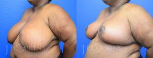 DrJHopkins_DallasTx_Breast_Reduction_B&A_Patient-21_Oblique