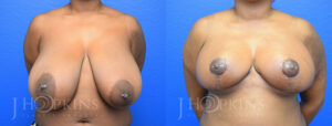 DrJHopkins_DallasTx_Breast_Reduction_B&A_Patient-22_Front