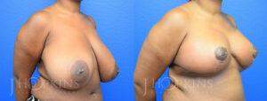 DrJHopkins_DallasTx_Breast_Reduction_B&A_Patient-22_Oblique