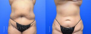 DrJHopkins_DallasTx_Liposuction_B&A_Patient-3_Front