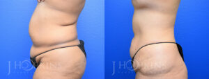 DrJHopkins_DallasTx_Liposuction_B&A_Patient-3_Side