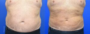 DrJHopkins_DallasTx_Liposuction_B&A_Patient-4_Front