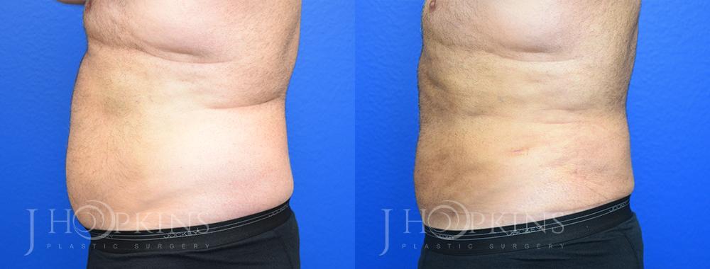 DrJHopkins_DallasTx_Liposuction_B&A_Patient-4_Side