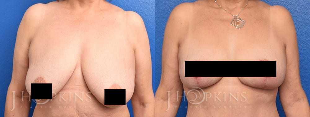 7a_breastlift_Censored2