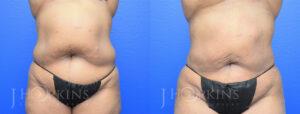 DrJHopkins_DallasTx_Liposuction_B&A_Patient-3_Front