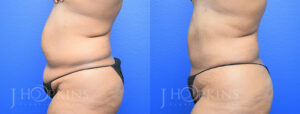 DrJHopkins_DallasTx_Liposuction_B&A_Patient-3_Side